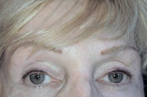 Permanent eyebrows and eyeliner